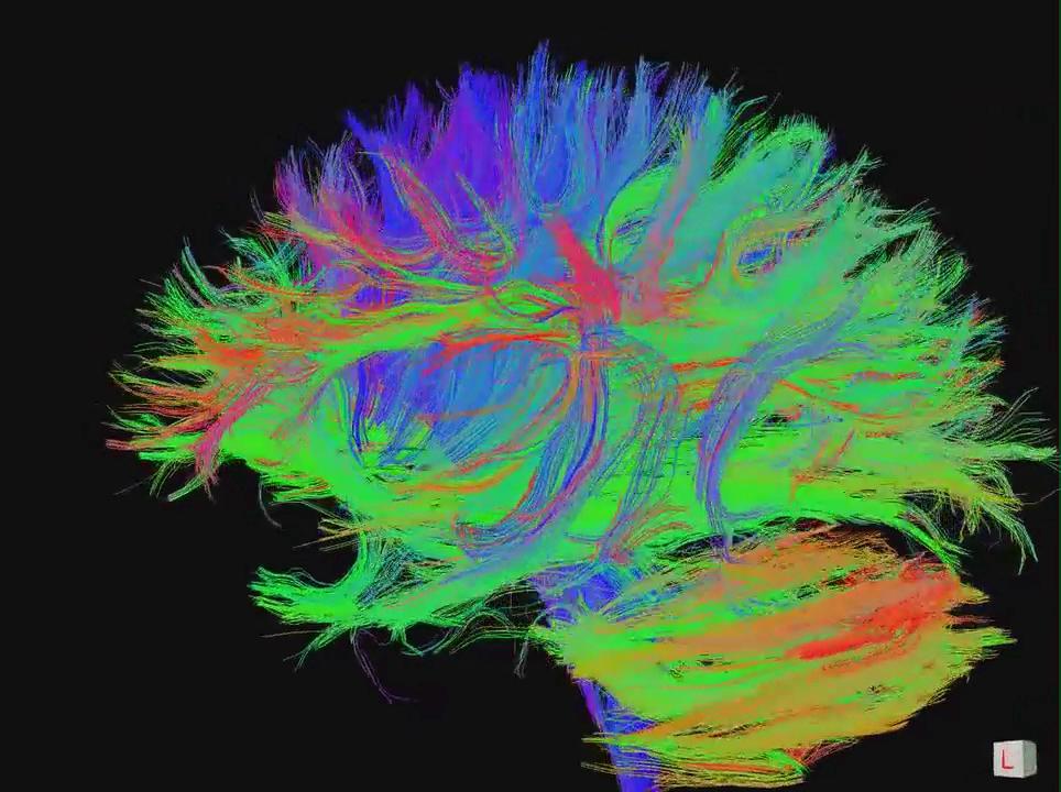 Conférence-débat : «Le cerveau apprenant» le 27/11/2019 à Roubaix